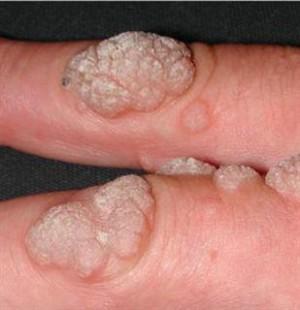 flatulenta antibiotice hpv research grants