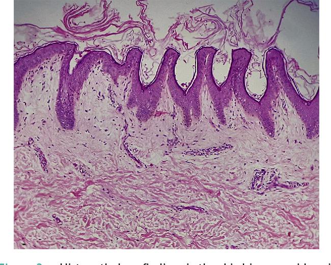 papillomatosis biopsy
