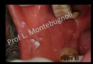 cancer endometrial gpc hpv femme operation