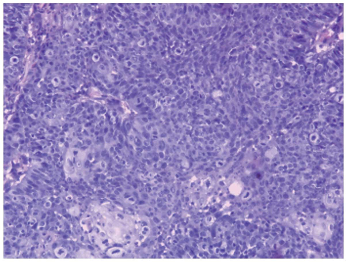 malignant inverting papilloma pancreatic cancer vista