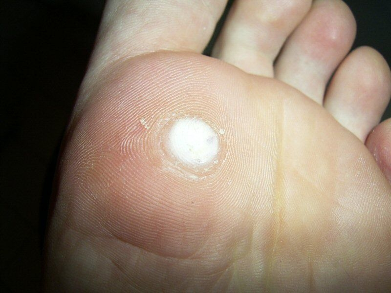 foot wart white