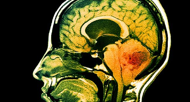 hiv related brain cancer