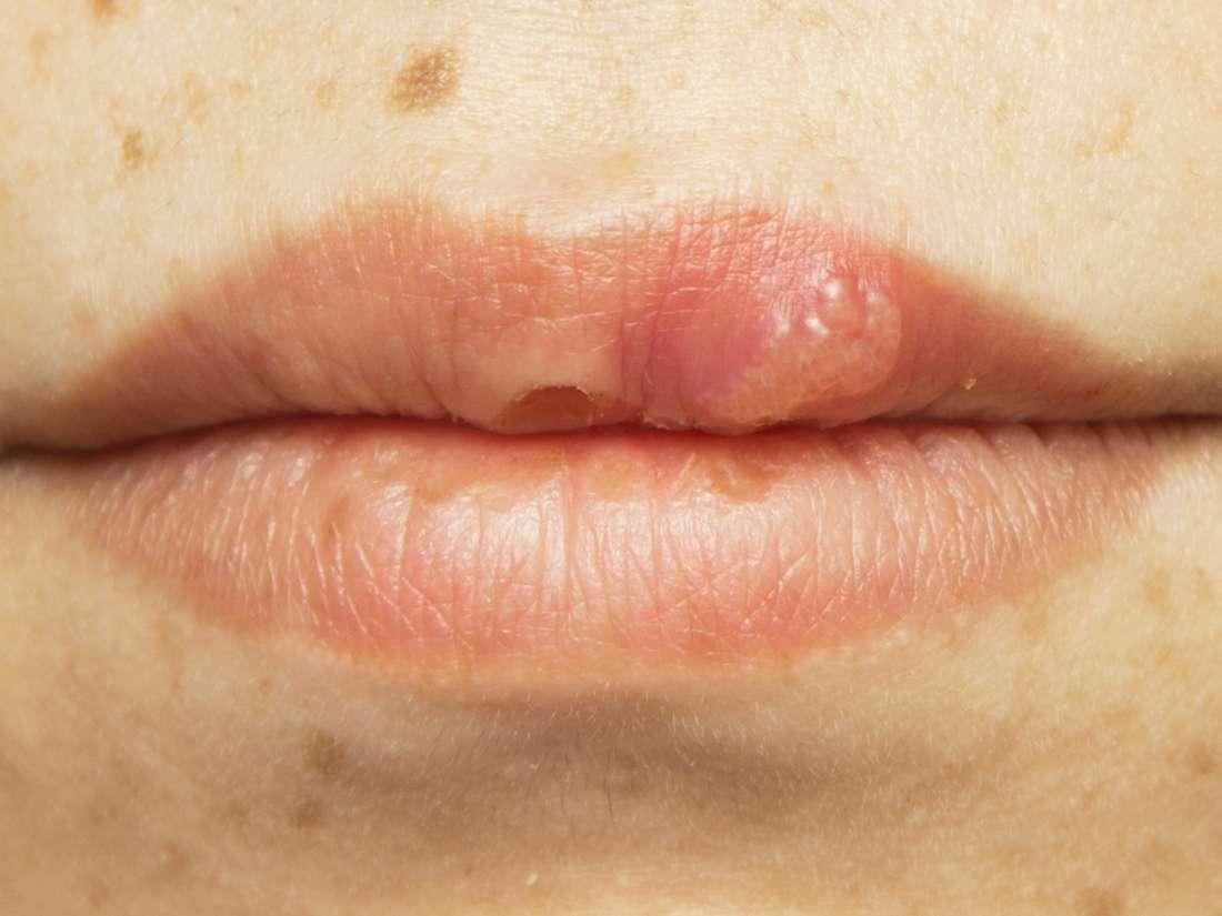 papiloma en hombres sintomas hpv high risk symptome