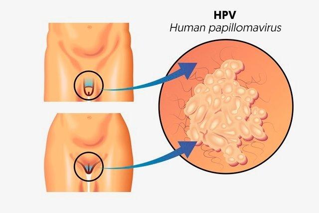 cancerul cerebral simptome laser papillomavirus et grossesse