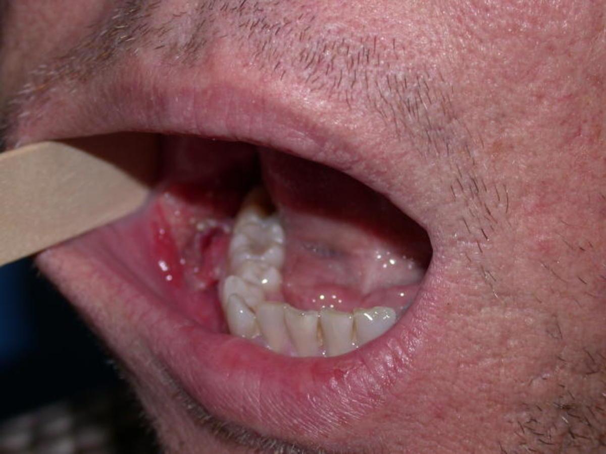 HPV o necunoscuta? - Forumul Softpedia