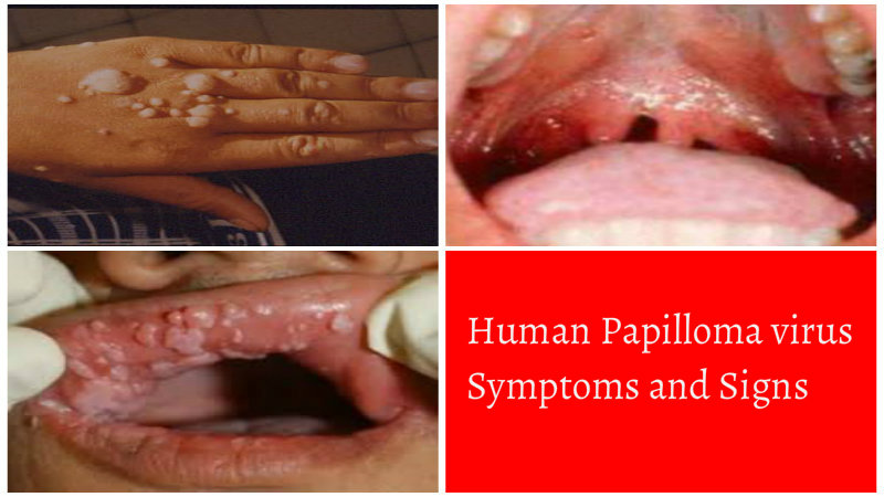 hpv causes and symptoms