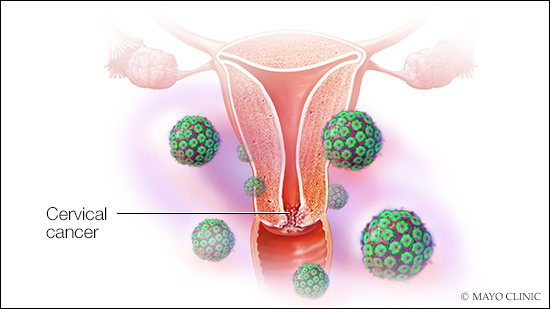 hpv cervical cancer pictures human papilloma virus szemolcs
