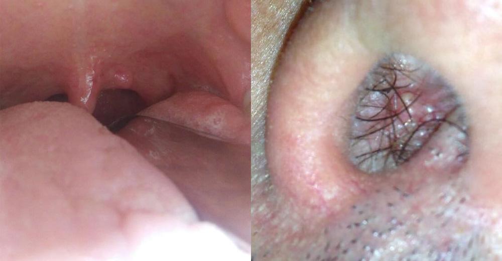 hpv naso sintomi