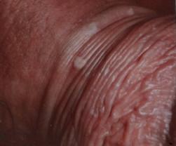hpv sintomi bruciore uterine cancer nursing diagnosis