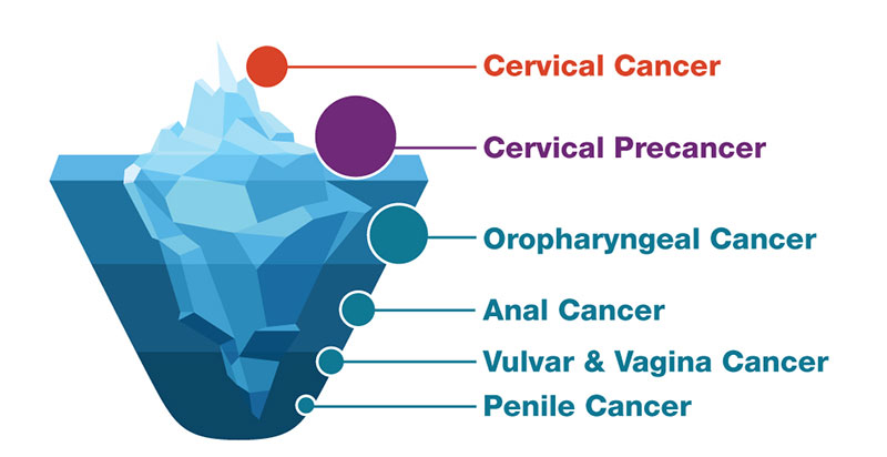 hpv that causes cancer