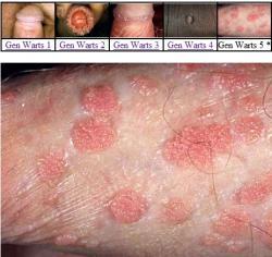 Prostata microflora cocci analni sex ,dyne s medem z receptu prostatitidy