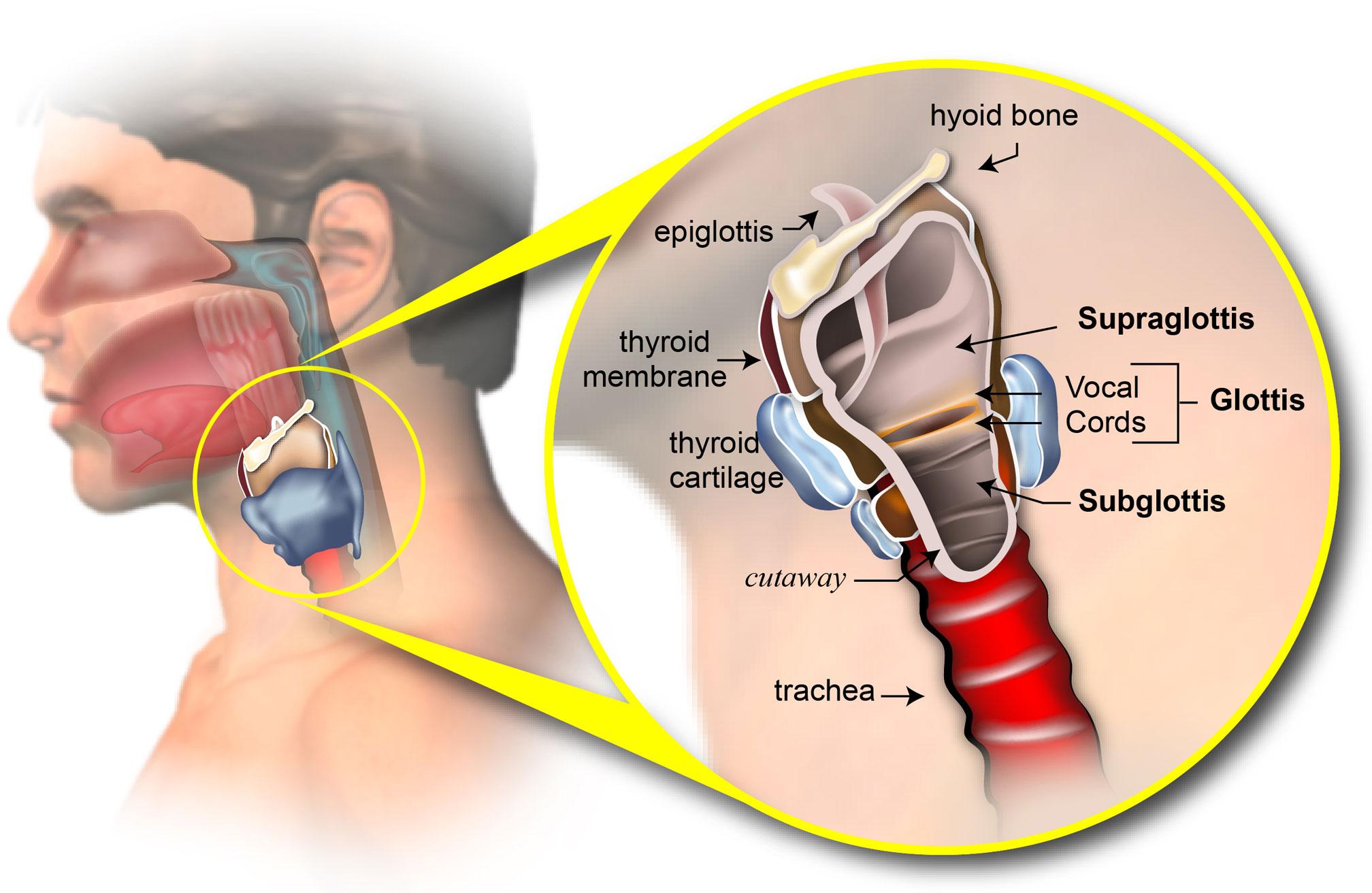 Human papillomavirus laryngeal cancer