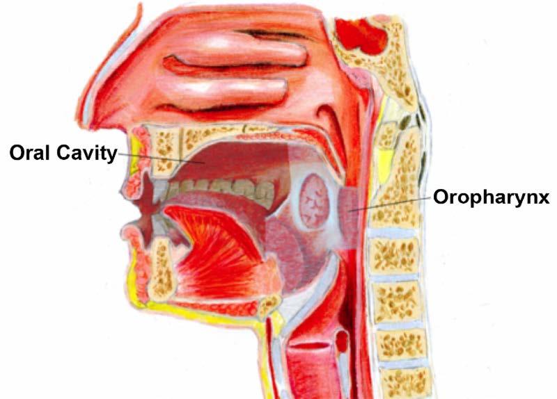 Virusul Papiloma - potenţială cauză în cazul neoplasmelor orofaringian și laringian.