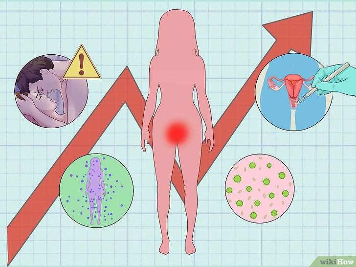 peripheral papilloma breast