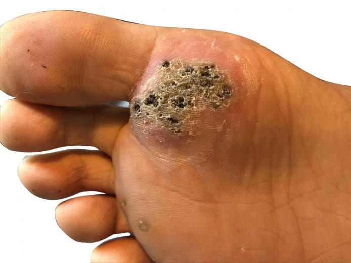 hpv warts on hands and feet