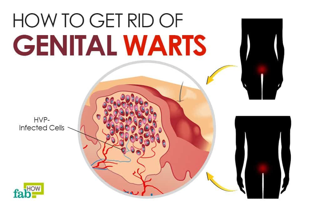 que es la papiloma virus paraziti intestinali la copii simptome