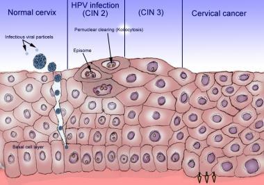 human papillomavirus infection length