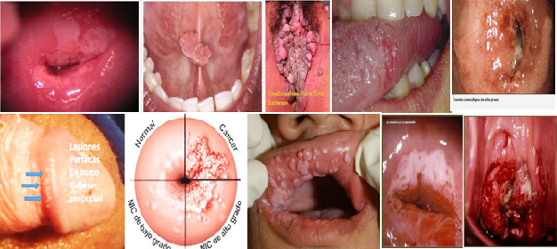 infeccion por virus del papiloma humano cancer de prostata hormonorefractario