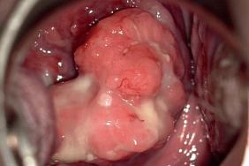 human papillomavirus norsk papiloma humano labios genitales