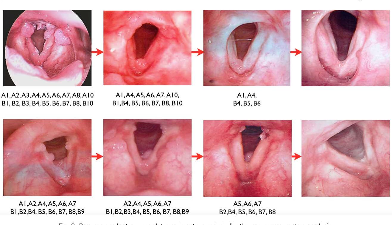laryngeal papillomatosis pubmed