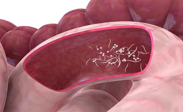 papillary thyroid cancer thyroglobulin