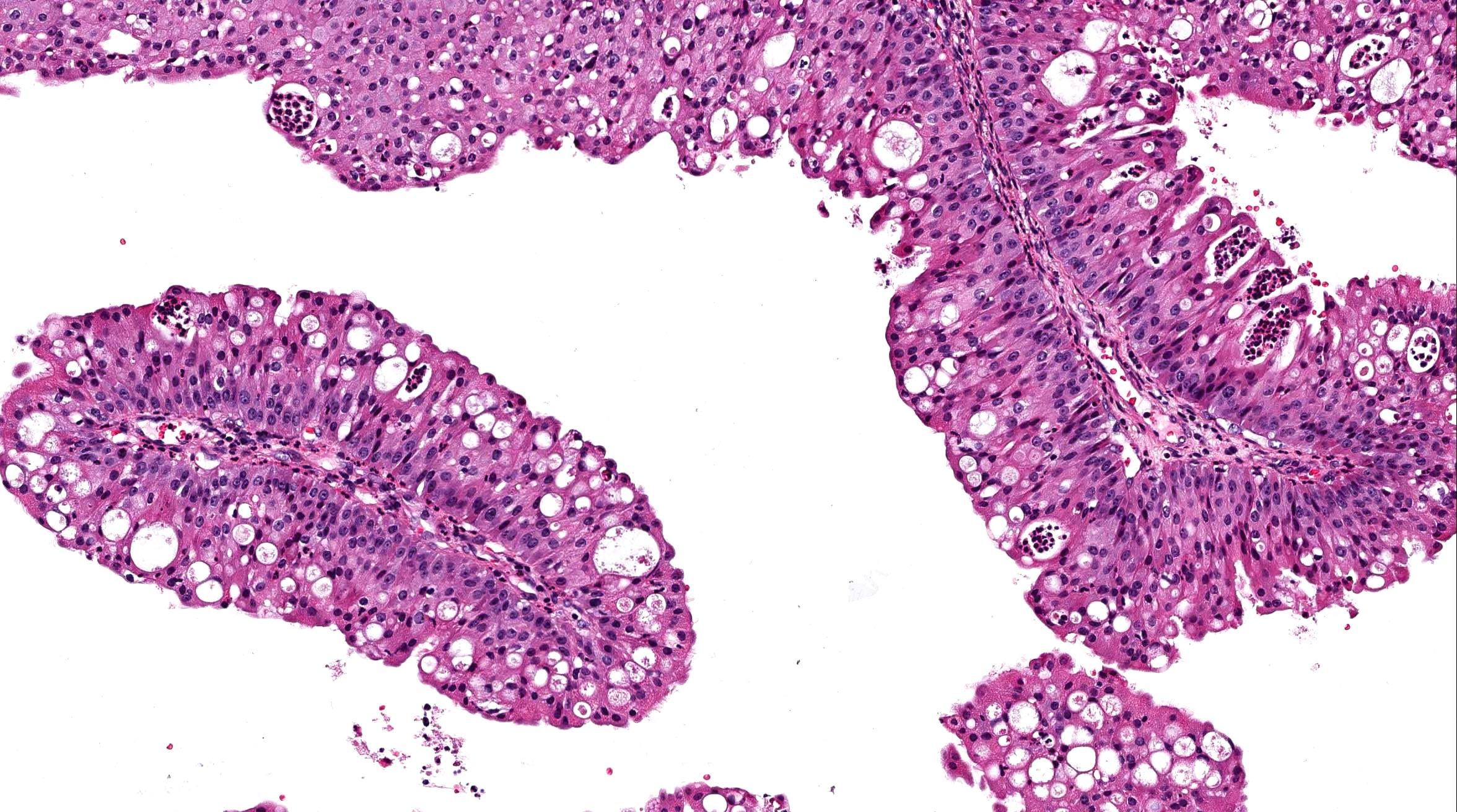 nasal inverted papilloma histopathology cervical cancer jab nhs
