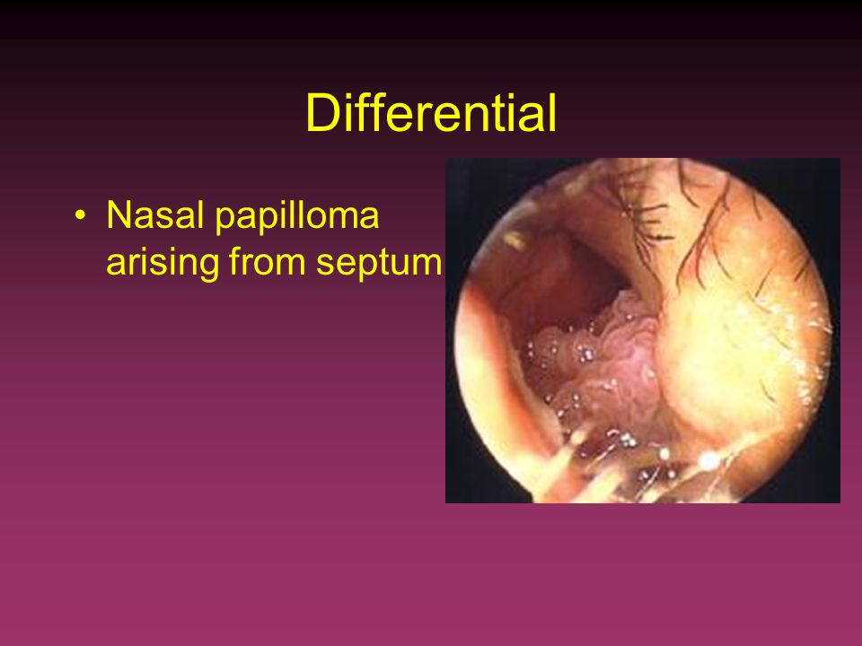 Squamous papilloma of the nasal septum Diagnostico de oxiuros