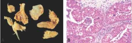 paraziti u stolici analiza condylomata acuminata jucken
