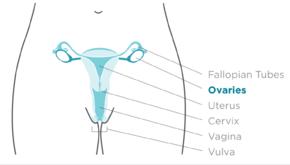 ovarian cancer left untreated