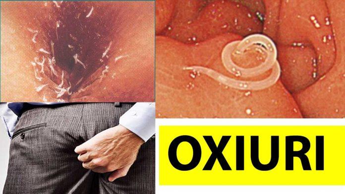 oxiuri simptome tratament