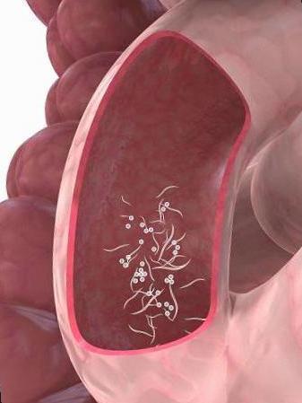 oxiuros sintomas y causas