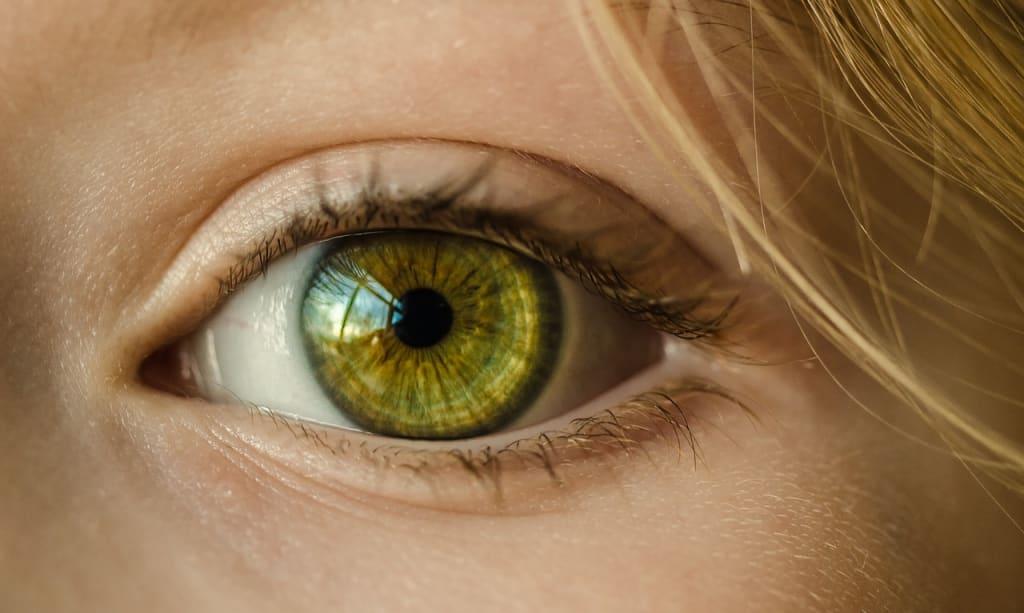 pancreatic cancer yellow eyes