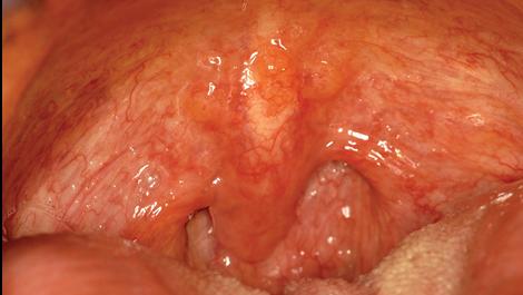 papillary lesion on uvula