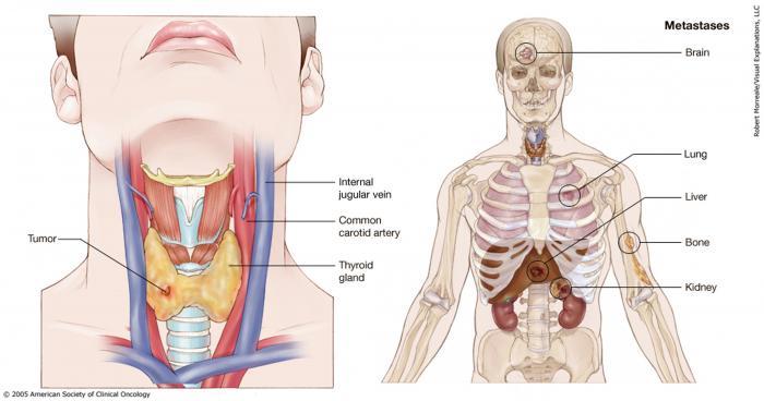 papillary thyroid cancer category 5