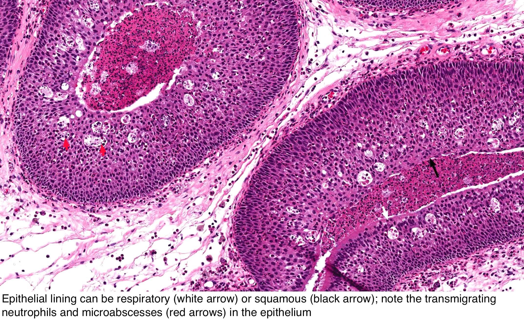 Cancer de faringe - Tot ce trebuie să ştii   Cancer