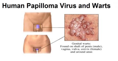papilloma causes