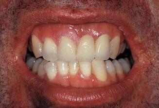 papilloma gingiva