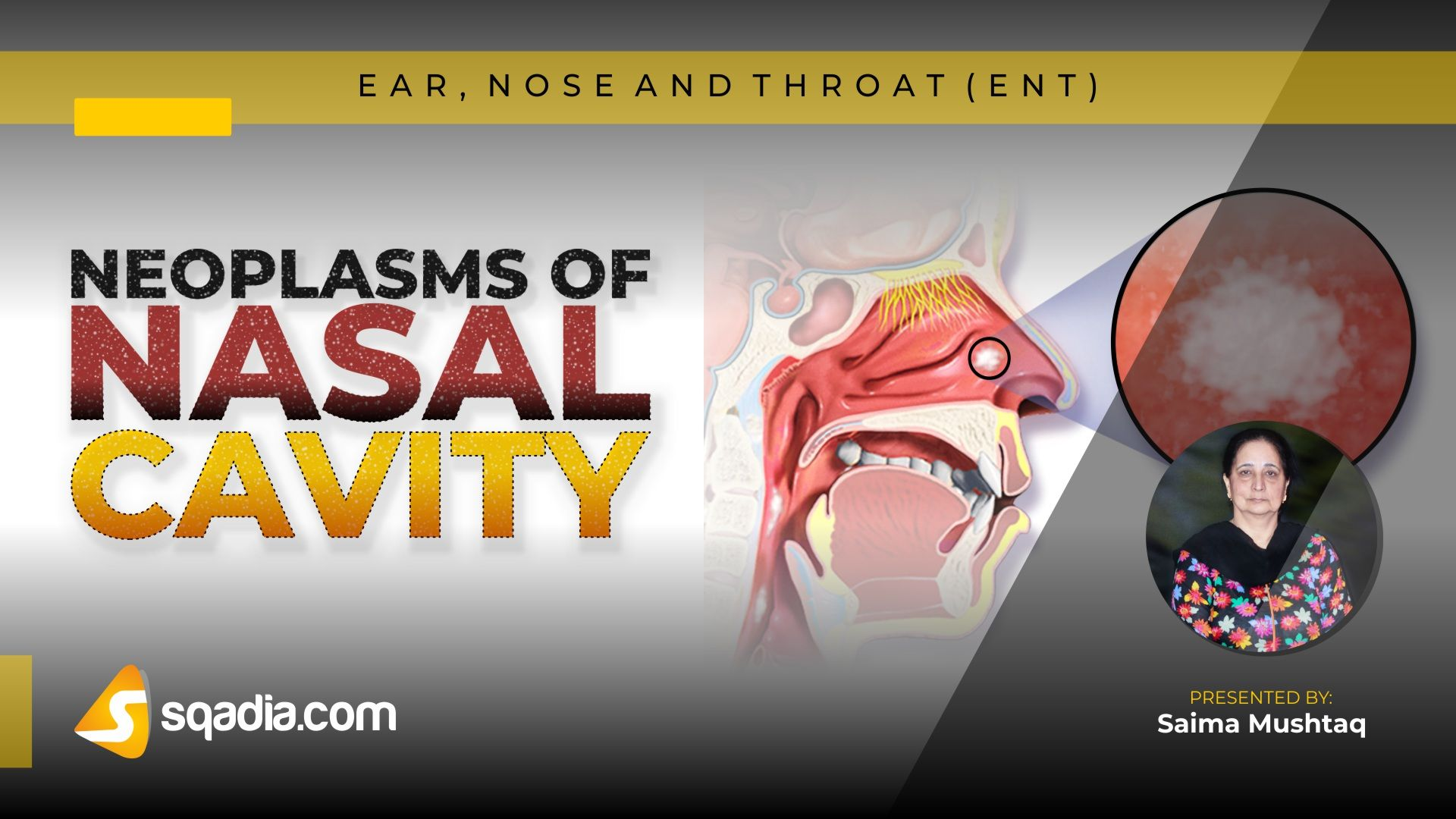 papilloma nasal vestibule