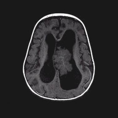 Papilom de plex coroid. Plexul coroid | Anatomie si fiziologie Papilom de plex coroid
