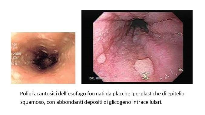 Tumore esofageo
