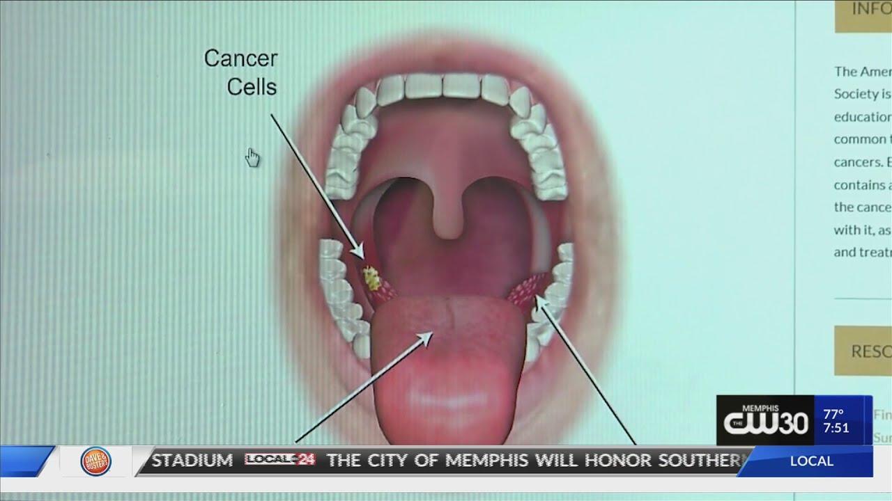 papilloma throat cancer
