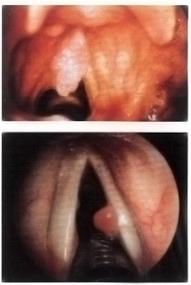 papilloma virus alle corde vocali care sunt lojei paraziți în intestine