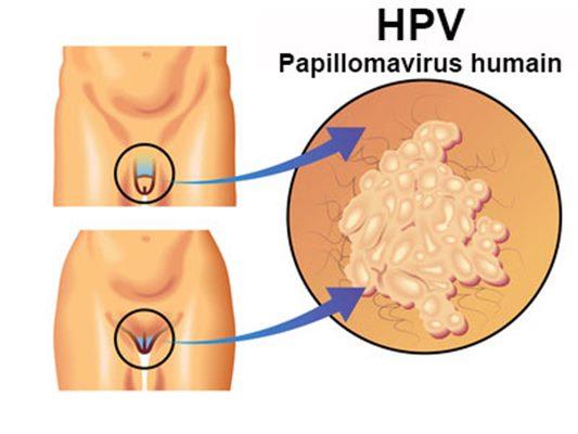 papilloma virus hommes