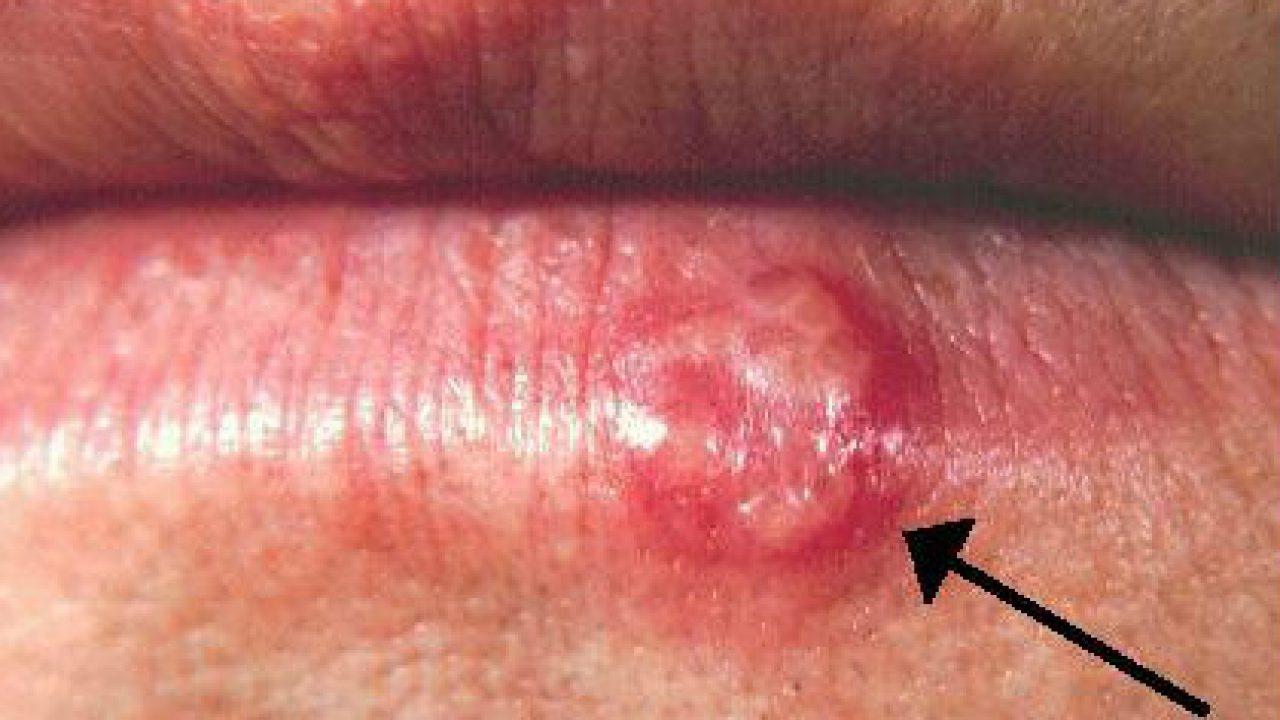 testicular cancer urinary symptoms