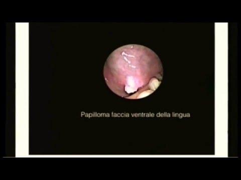 papilloma virus su corde vocali