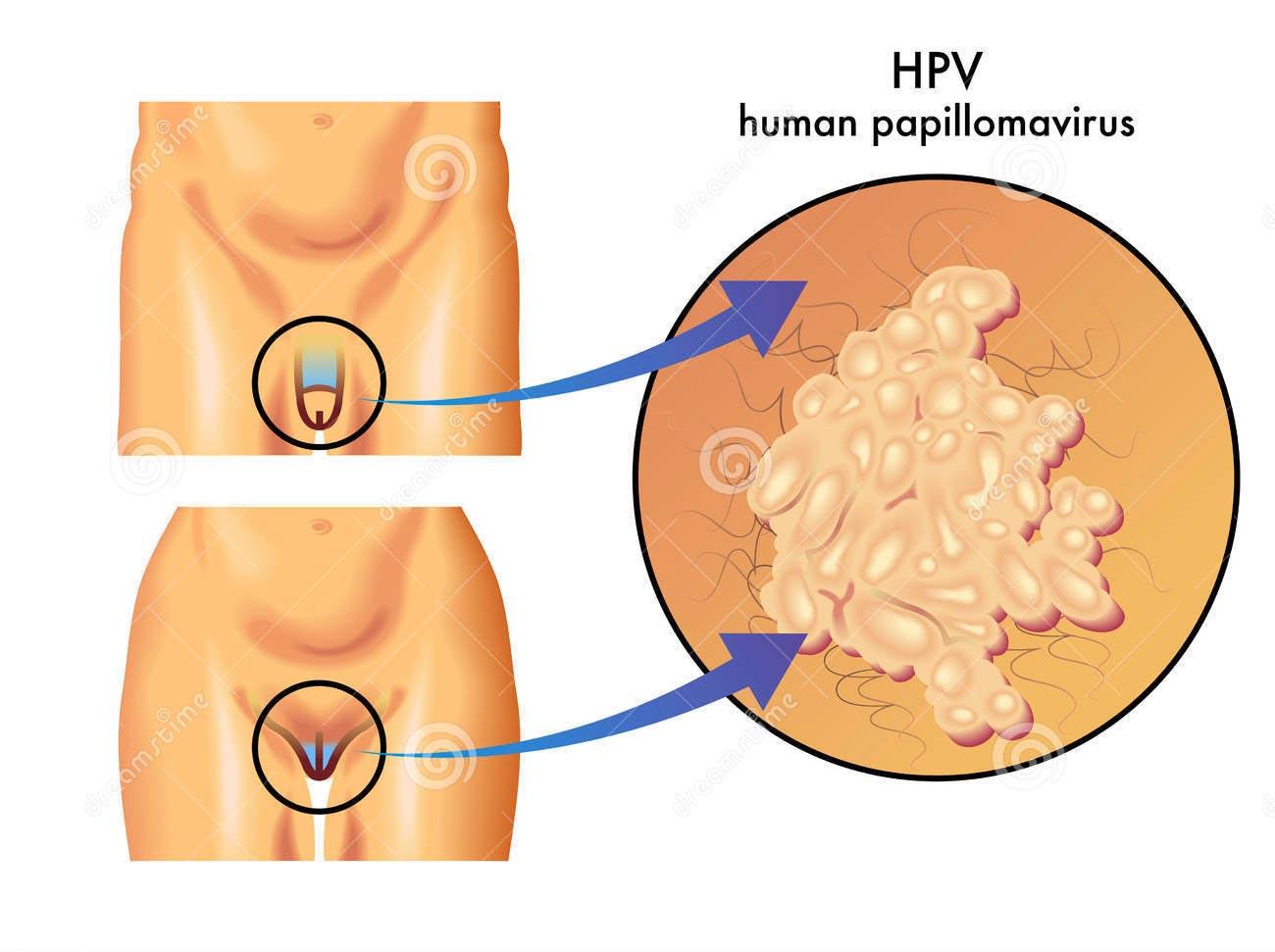 papilloma virus umano nelluomo sintomi