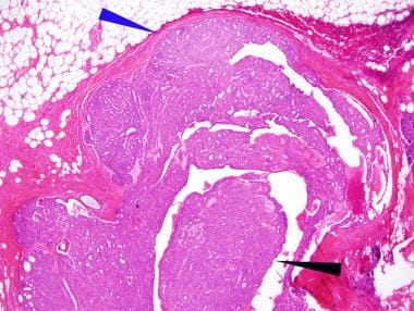 Preneoplasia of the Breast, A New Conceptual Approach to Proliferative Breast Disease