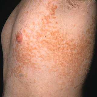 papillomatosis of the skin