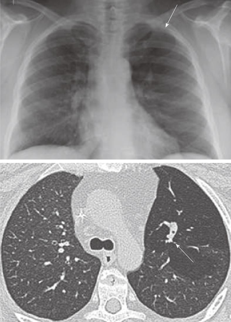 papillomatosis x ray