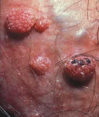 papillomavirus et urticaire